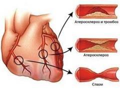 Почему возникает стенокардия, в чем ее причина?