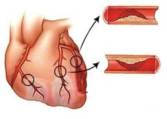 Проникающий, трансмуральный, Q-позитивный инфаркт или инфаркт миокарда с элевацией ST