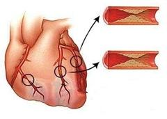 Непроникающий, Q-негативный инфаркт миокарда, или инфаркт миокарда без элевации ST