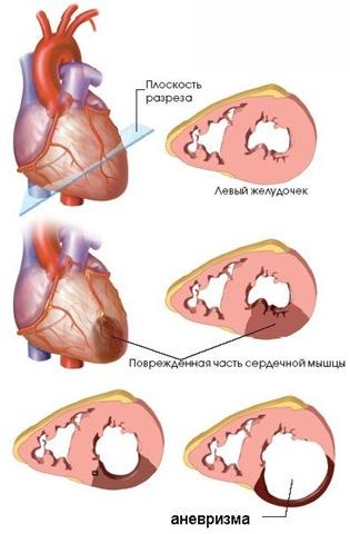 чечевица при повышенном холестерине