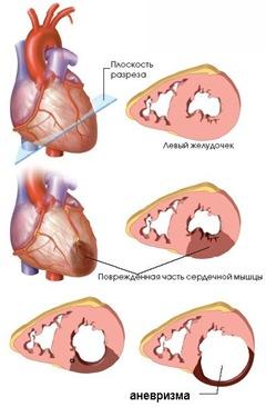 Что такое аневризма левого желудочка и что с ней делать?