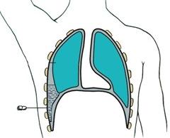 Как лечить гидроторакс, вызванный сердечной недостаточностью?