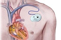 Кардиостимулятор при лечении сердечной недостаточности