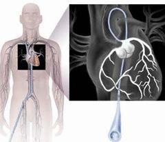 Нужна ли при сердечной недостаточности коронарография?