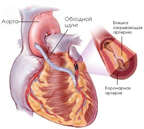Что такое аортокоронарное шунтирование сердца или АКШ?