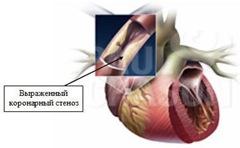 Стенокардия Принцметала или вариантная стенокардия