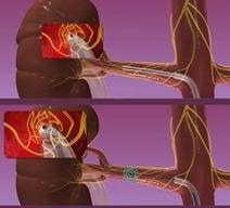Денервация почечных артерий – новое в лечении