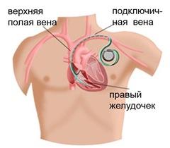 Лечение атриовентрикулярной блокады