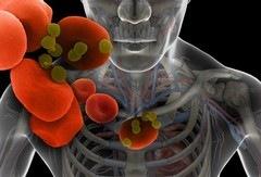 Что такое бактериемия?
