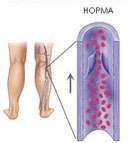 Диагностика тромбоза глубоких вен голеней