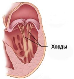 Дополнительная хорда левого желудочка