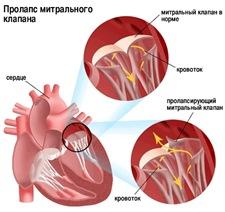 Классификация пролапса митрального клапана