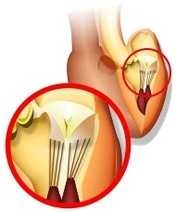 Пролапс клапана - симптомы
