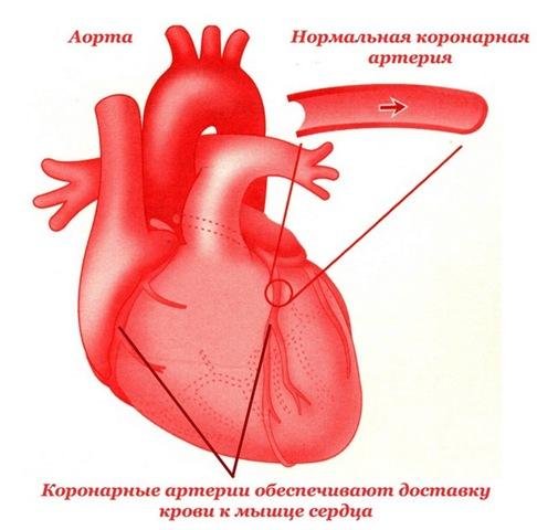 ... такое ишемическая болезнь сердца - ИБС
