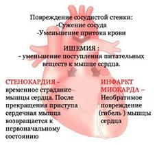 Ишемия, стенокардия, инфаркт