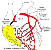 Задний инфаркт миокарда