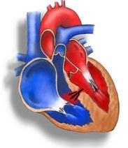 Что происходит с сердцем при дефекте межжелудочковой перегородки