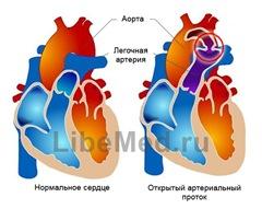 Диагностика открытого артериального протока