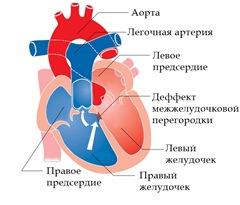 Тетрада Фалло симптомы