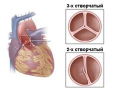 Двустворчатый аортальный клапан