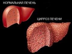 Кардиальный цирроз печени – финал сердечной недостаточности