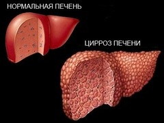 Химиопрофилактика гепатита с