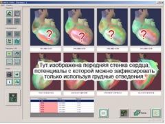 Изображение на кардиовизоре