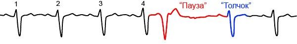 Механизм работы сердца при экстрасистолической аритмии