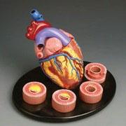 Аортокардиосклероз