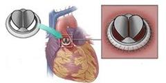 Имплантация аортального клапана
