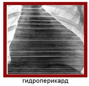 Гидроперикард