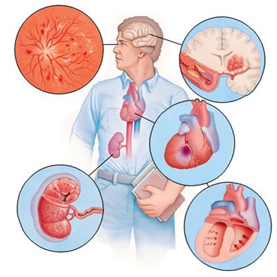 Вторичная артериальная гипертензия