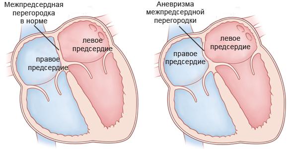 Аневризма межпредсердной перегородки (МПП)