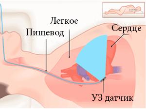 Чреспищеводная эхокардиография