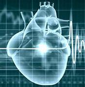 Электрофизиологическое исследование сердца – ЭФИ